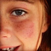 Bruised!